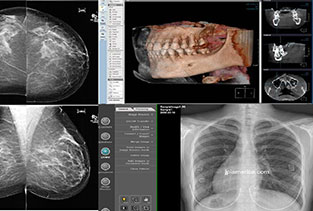Digital Radiology Mammography